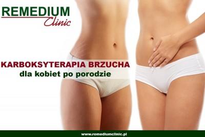 karboksyterapia brzucha